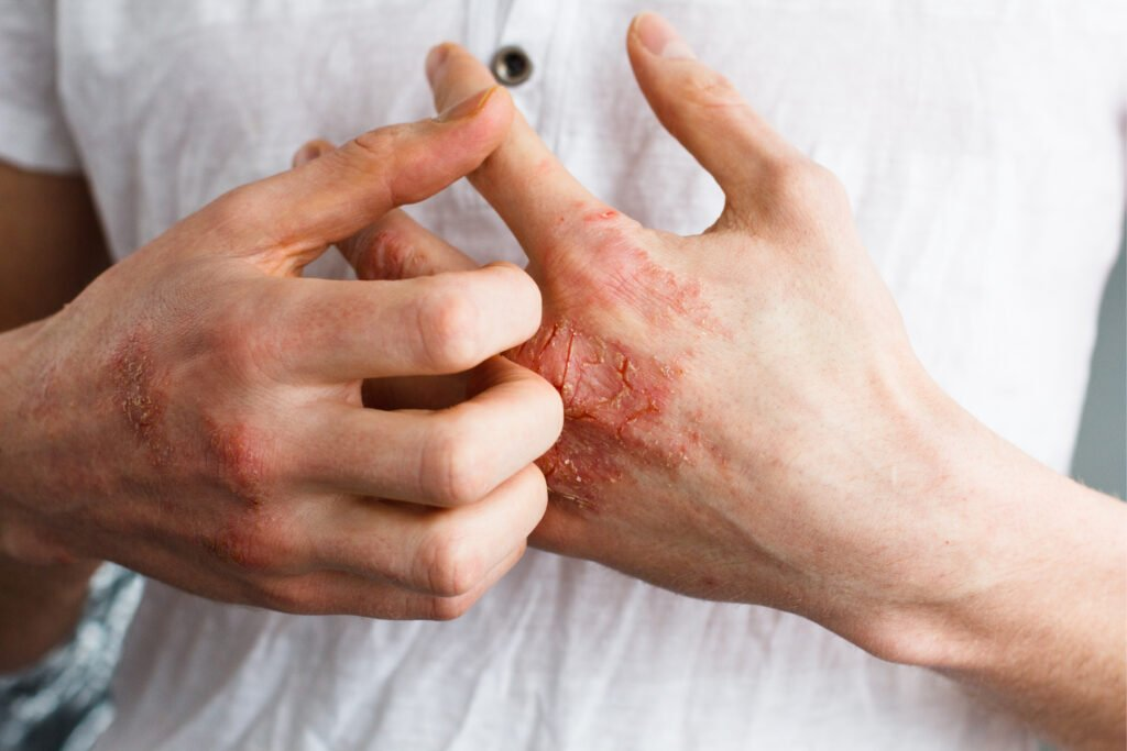 Causes of eczema for Atlanta patients