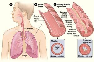 Diagram of airways during an asthma episode