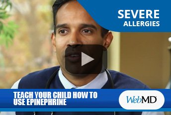 Dr. Chacko explaining how to teach children to use the Epipen on WebMD