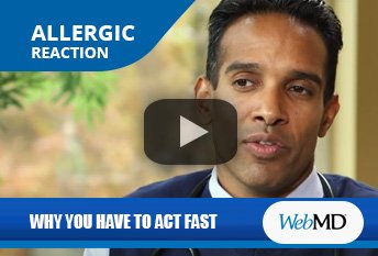 Dr. Thomas Chacko Discussing the Importance of Acting Fast During Allergic Reactions