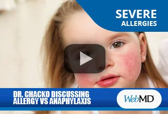 Dr. Thomas Chacko Discussing Allergy VS. Anaphylaxis on WebMD